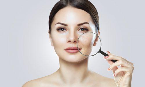 zmiany skórne-objaw chorej wątroby